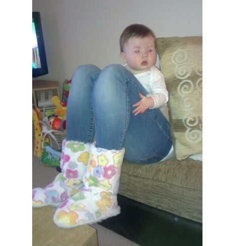 Baby Legs